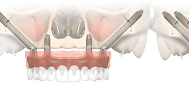 Как осуществить быстро полное протезирование зубов